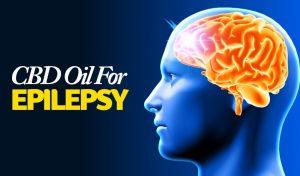 cbd-for-epilepsy